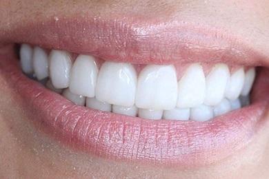 виниры из композита на передние зубы